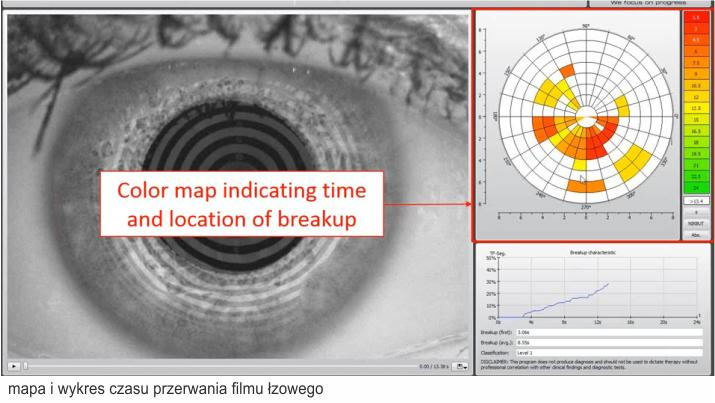 mapa i wykres czasu przerwania filmu łzowego - badanie nibut Wrocław